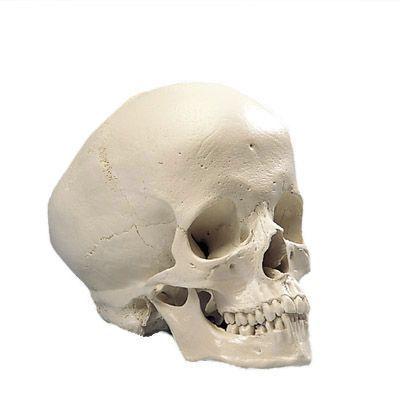 Model czaszki człowieka z wodogłowiem A29/2