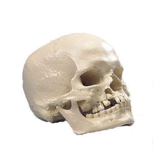 Model mikrocefalicznej czaszki A29/1