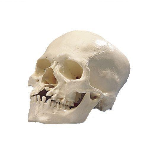 Model czaszka z rozszczepem szczęki i podniebienia A29/3