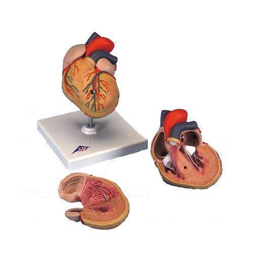 Model serca z przerostem lewej komory G04