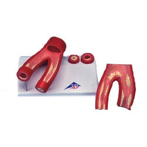Model arteriosklerozy, przekrój poprzeczny i wzdłużny przez tętnice G40