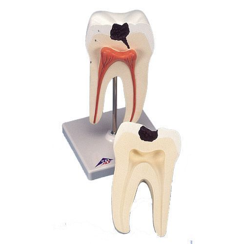 Model dolnego zęba trzonowego z podwójnym korzeniem i widoczną próchnicą D10/4