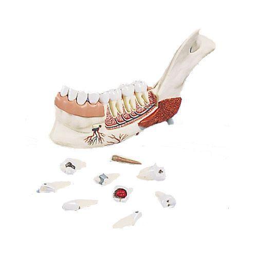 Zaawansowany model połowy szczęki z 8 chorymi zębami, 19 części VE290