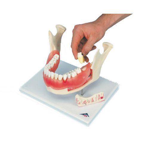 Model choroby zębów, dwukrotnie powiększony, 21 części D26
