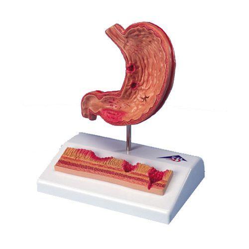 Model przekroju żołądka z wrzodami K17