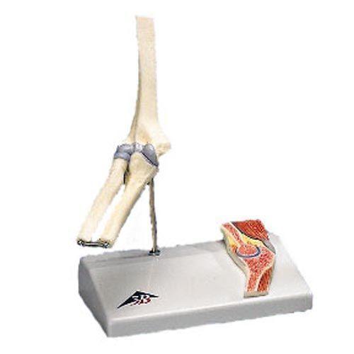Miniatura modelu stawu łokciowego z przekrojem poprzecznym A87/1