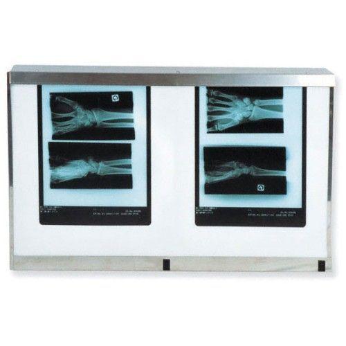 Podwójny panel standardowy X Ray Viewer z przełącznikiem, 54W