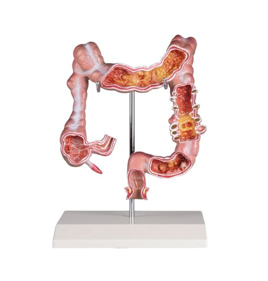 Model okrężnicy z chorobami Erler Zimmer