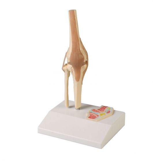 Model miniatury przekroju poprzecznego stawu kolanowego Erler Zimmer