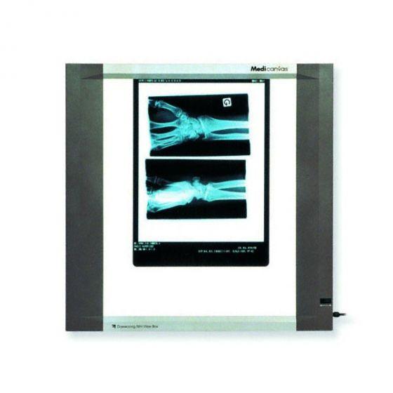 Pojedynczy panel LCD podświetlarki do zdjęć RTG, (22W)