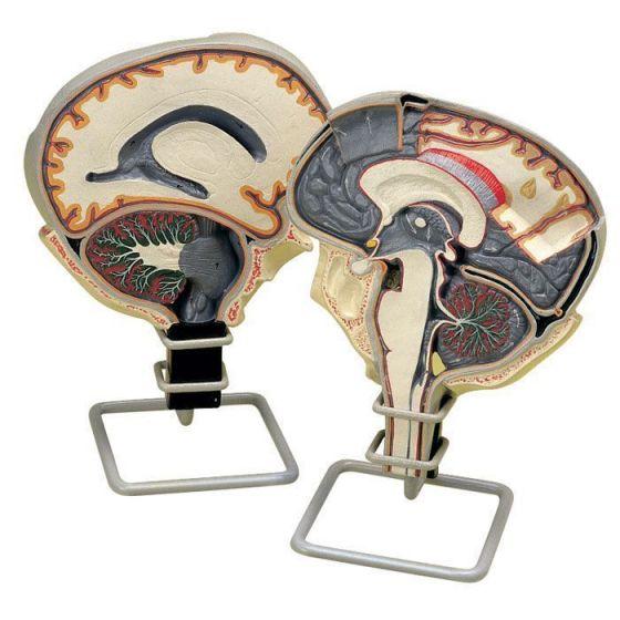 Krążenie płynu mózgowo-rdzeniowego W19027