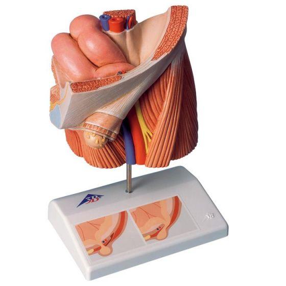 Model przepukliny pachwinowej H13